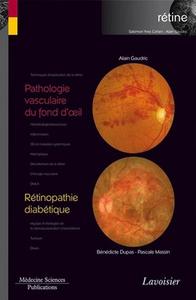 Livre numérique Pathologie vasculaire du fond d'oeil / Rétinopathie diabétique
