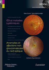 Livre numérique Œil et maladies systémiques / Anomalies et affections non glaucomateuses du nerf optique