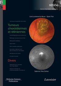 Livre numérique Tumeurs choroïdiennes et rétiniennes / Divers