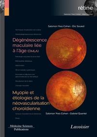 Livre numérique Dégénérescence maculaire liée à l'âge (DMLA) / Myopie et étiologies de la néovascularisation choroïdienne